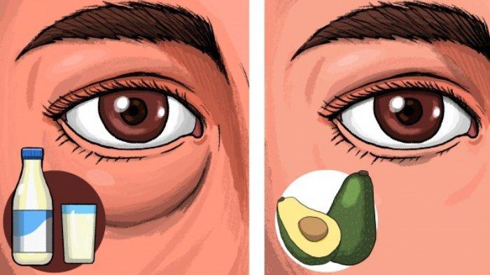 Mata Bengkak kantung mata