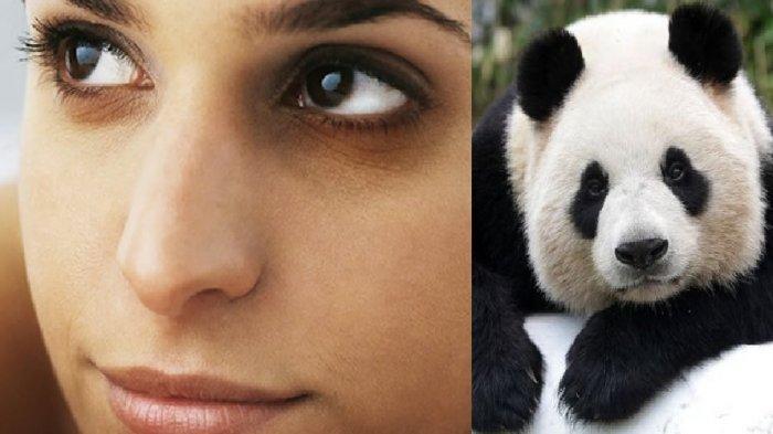 Miliki Mata Panda Yang Ganggu Penampilan? Ini Tips Mudah Untuk Atasi Lingkaran Hitam Di Bawah Mata