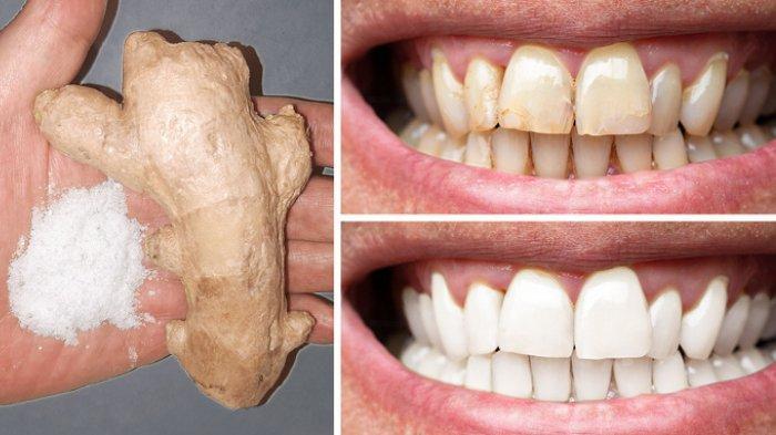 8 Cara Alami Membuat Gigi Lebih Putih Di Rumah Gunakan Bahan Bahan Alami Ini Tribunstyle Com
