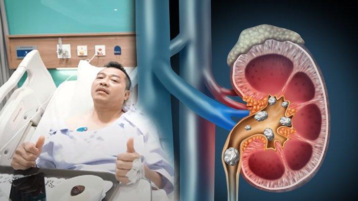 Mengenal Penyebab dan Gejala Batu Ginjal, Penyakit yang Diidap Anang Hermansyah hingga Harus Operasi