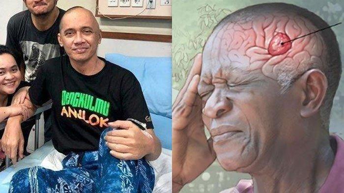 Mengenal Glioblastoma, Penyakit yang Menyerang Otak Kiri Agung Hercules, Ini Penyebab & Gejalanya
