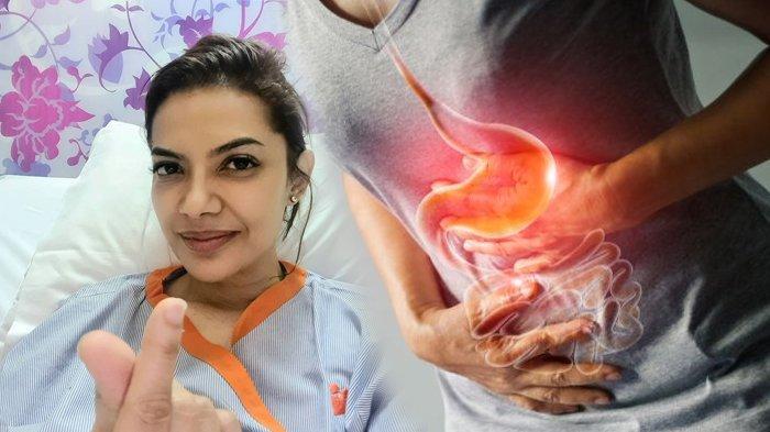 POPULER Gejala serta Macam-Macam Gangguan Usus, Penyakit yang Buat Najwa Shihab Dilarikan ke RS