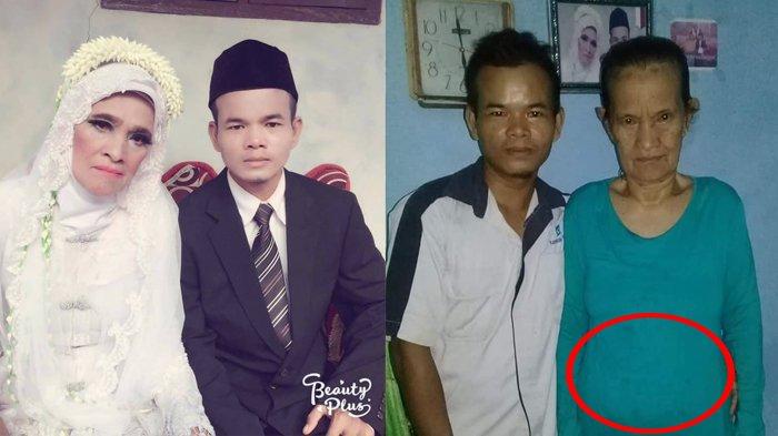 Viral Nenek 78 Tahun di Bogor Mengandung, Dinas Kesehatan Bantah Lewat Hasil USG, Negatif Hamil?