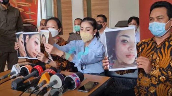 Nindy Ayunda tunjukkan bukti foto KDRT Askara Harsono.