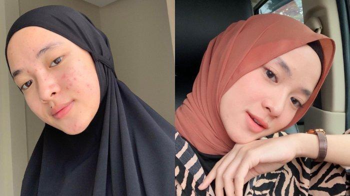 Pamer Selfie Tak Make Up, Nissa Sabyan Tunjukkan Wajah Berjerawat, Iis Dahlia: 'Kunaon Neng?'