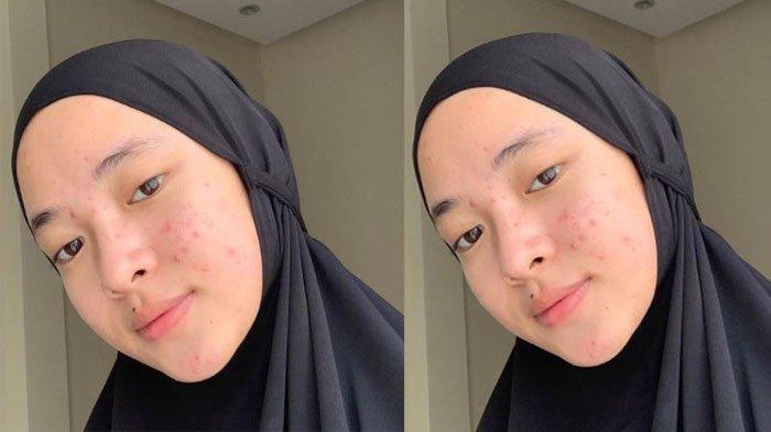 Nissa Sabyan Tetap PD Wajah Berjerawat & Tanpa Makeup, Langsung Panen Pujian, Intip Potretnya!