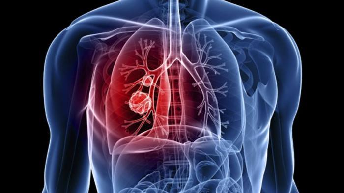 Infeksi paru-paru (ilustrasi).
