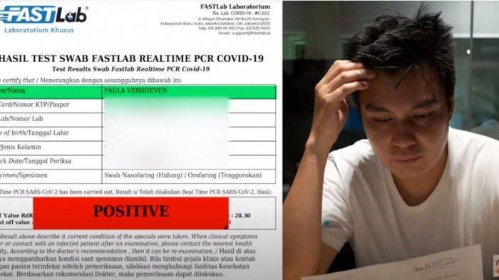 Paula Verhoeven positif Covid-19, Baim Wong khawatir