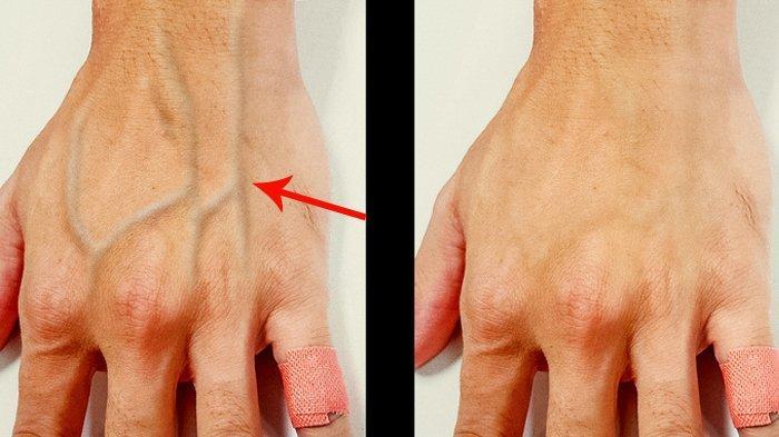 5 Fakta Pembuluh Darah Vena yang Menonjol di Tangan, Bahaya Jika Disertai Bisul hingga Sesak Nafas