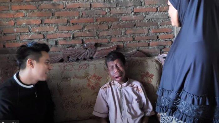 DULU Ingin Bertemu Baim Wong Sebelum Meninggal, Kondisi Ihza Makin Pilu, Kesakitan Tumor Membesar