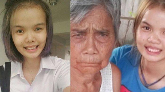 Ingin Lebih Cantik, Gadis Ini Dibully Setelah Operasi Plastik, Ternyata Wajahnya Jadi Seperti Ini