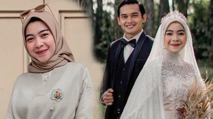 POPULER 4 Profil Novia Giana Nurjanah Istri Ikbal Fauzi, Ternyata Dokter Muda yang Diajak Taaruf