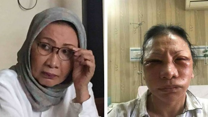 Ratna Sarumpaet sebelum dan sesudah sedot lemak wajah