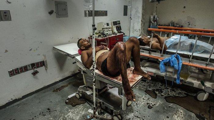 RUMAH SAKIT Paling Miris Sedunia, Tanpa Listrik, Air Bersih, Sabun, Pasien Meradang Minim Perawatan