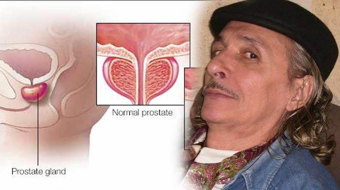 Rudy Wowor Meninggal karena Kanker Prostat, Ini 10 Gejala Awalnya yang Kerap Disepelekan Para Pria