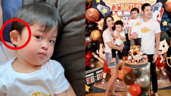 Kuping Raphael Moeis Teriris saat Potong Rambut, Anak Sandra Dewi Rayakan Ultah Sambil Menahan Sakit
