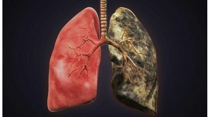 Selain Rokok, Ini 7 Penyebab Kanker Paru-paru yang Umum Diketahui: dari Asbes, Polusi, hingga Vape