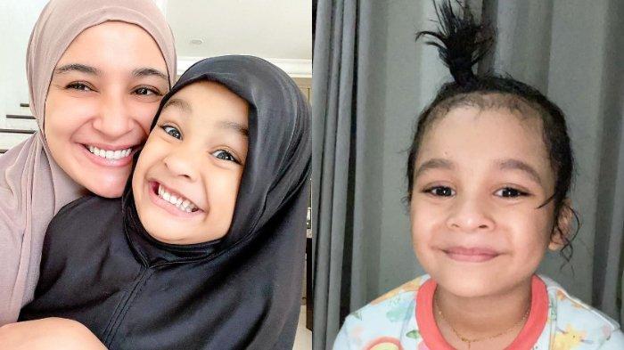 PUSING Rambut Anak Jadi Kaku Buntut Main Kecap dan Tepung, Shireen Sungkar Minta Saran: Biar Turun