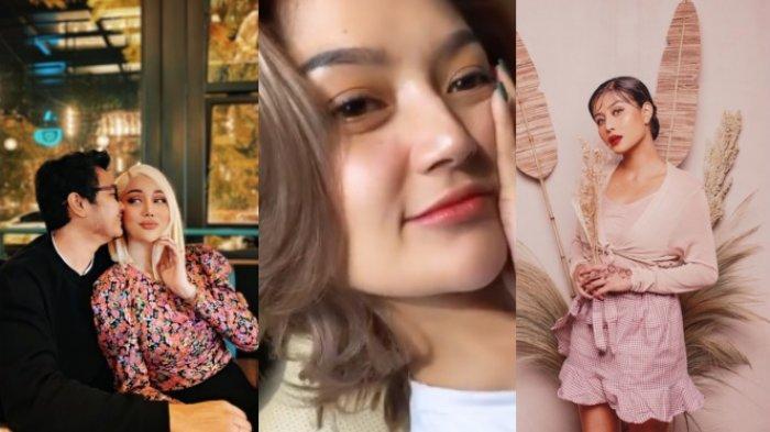 Demi Tampil Menawan, 5 Artis Cantik Ini Lakukan Filler Bibir, dari Lucinta Luna hingga Siti Badriah