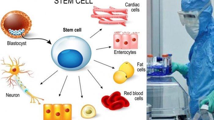 Ini Manfaat Stem Cell yang Digunakan Cinta Penelope dan Ani Yudhoyono untuk Pengobatan Kanker