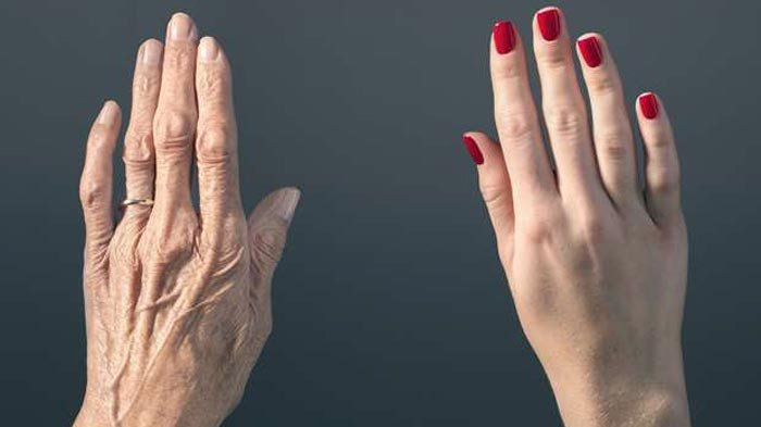 Tips Menghilangkan Keriput di Tangan, Kembali Kencang dan Mulus dengan 3 Bahan Alami Ini!