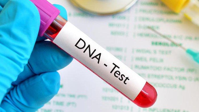 Tes DNA