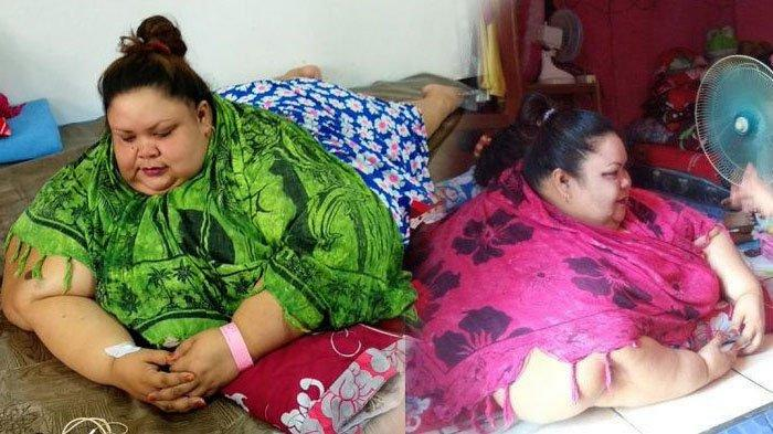 Kondisi Terbaru Titi Wati, Wanita Berbobot 220 Kg, Mulai Bisa Duduk dan Telentang Usai Operasi