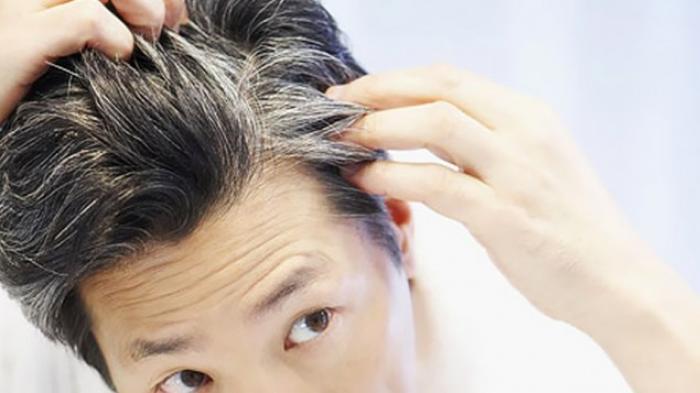 5 Bahan Perawatan Rambut Ini Bisa Mengobati dan Mencegah Rambut Cepat Beruban