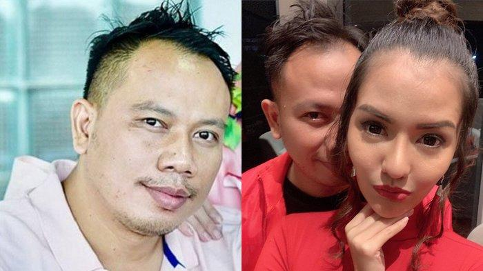 Vicky Prasetyo Akui Telah Putus dari Anggia Chan, 'Ada Konflik Batarayuda'
