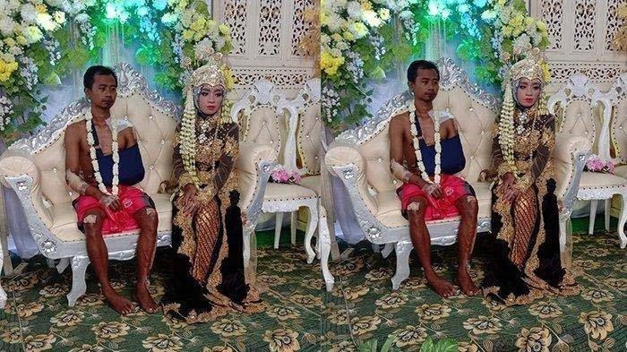 Viral pengantin bernama Suprapto, tubuhnya penuh perban saat duduk di pelaminan