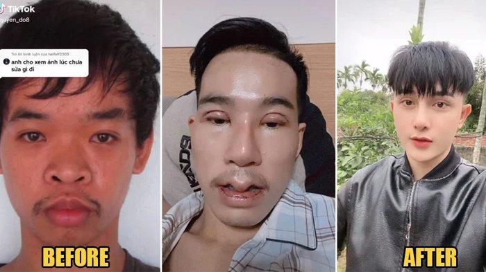 VIRAL Potret Transformasi Pria Nekat 9 Kali Oplas Hingga Tak Dikenali Ortu, Terkuak Penyebabnya Pilu