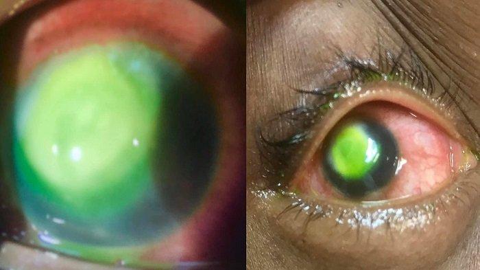 viral-seorang-wanita-tidur-denga-kontak-lensa-yang-berakibat-fatal-dokter-buktikan-dengan-gambar.jpg