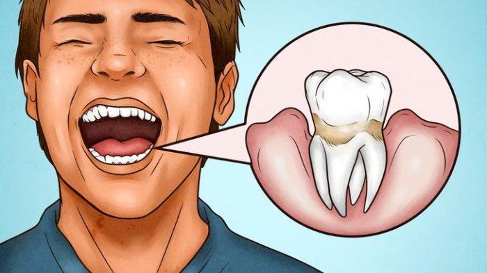 4 Tanda Terlalu Kencang saat Menggosok Gigi Bikin Jadi Sensitif, Begini Cara yang Benar