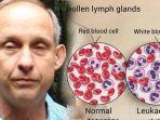 david-linglei-leukemia.jpg