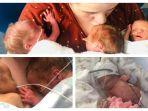 divonis-steril-perempuan-ini-terkejut-bisa-lahirkan-bayi-kembar-3-dengan-lahiran-prematur-sesar.jpg