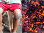 ibu-paksa-anaknya-berlutut-di-bara-api-karena-pulang-tak-membawa-tas-yang-tertinggal-di-sekolah.jpg