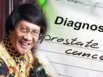 kak-seto-didiagnosis-kanker-prostat.jpg