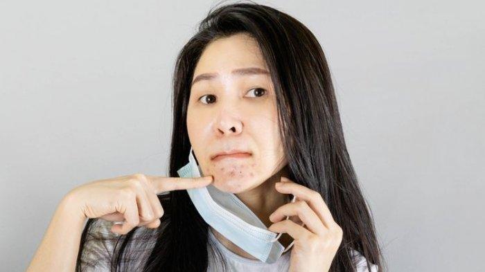 Ilustrasi penggunaan masker sebabkan jerawat di wajah.