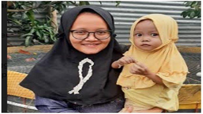 Operasi Jantung Balita Aisha di Musi Banyuasin Jadi Sorotan, Stafsus Presiden Perintahkan Hal Ini