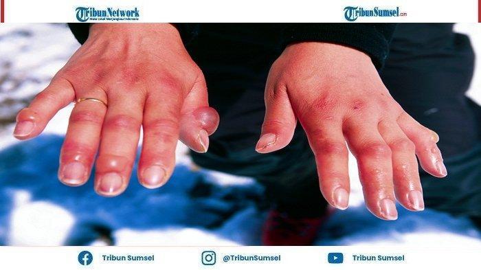 Penyakit Frosbite Biasa Menyerang Pendaki Gunung Di lapisan Kulit, Salah Satu Yang menjadi Ciri Khas Yaitu Mati Rasa Dan Nyeri Tak Tertahankan.