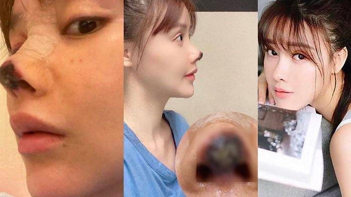 Artis Ini Dulu Jadi Korban Malpratik Hidung Nyaris Busuk, 1 Tahun Berlalu Penampilan Bikin Pangling