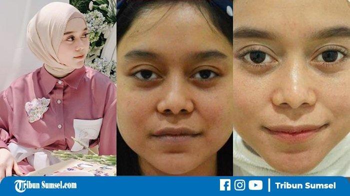 Tak Hanya Lesty Kejora, Dokter ini Ungkap Daftar Artis yang Perawatan Botox, Ada Ayu Ting Ting