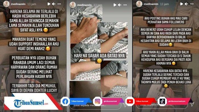 Medina Zein Pamer Foto Lebam Akibat Menjadi Korban Kekerasa Suaminya