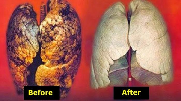 Video ini Tunjukkan Detik-detik Kerusakan Paru-paru Pada Pasien yang Positif Virus Corona, Ngeri!