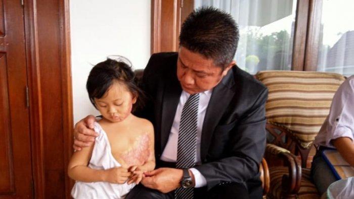 Baznas Sumsel Bantu Pengobatan Si Cilik Quenza dan Tiga Pasien Kronis, Mereka Termasuk Mustahiq