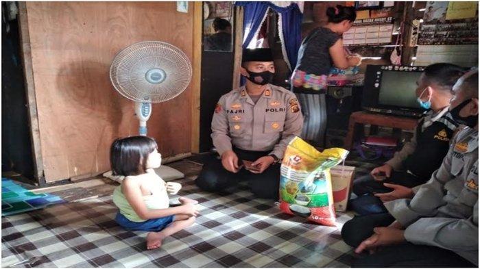 Atas Rujukan Kapolda Sumsel, Bocah Penderita Tumor Tulang Punggung Dirawat di RS Byangkara Palembang