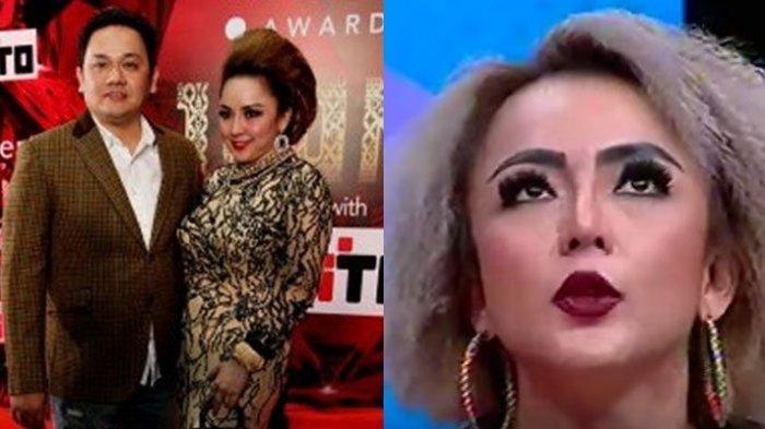 Ingat Regina, Mantan Istri Farhat Abbas, Lakukan Permak Bibir, Penampilannya Kini Bak ABG