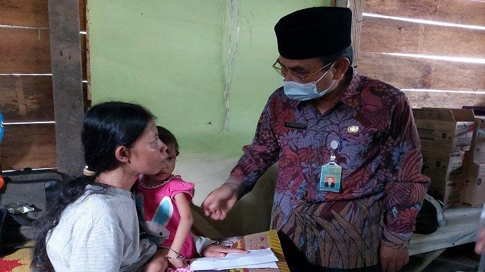 Sekda Kunjungi Penderita Gizi Buruk di Muaraenim, Bocah 4 Tahun Berat Badan Hanya 6 Kilogram