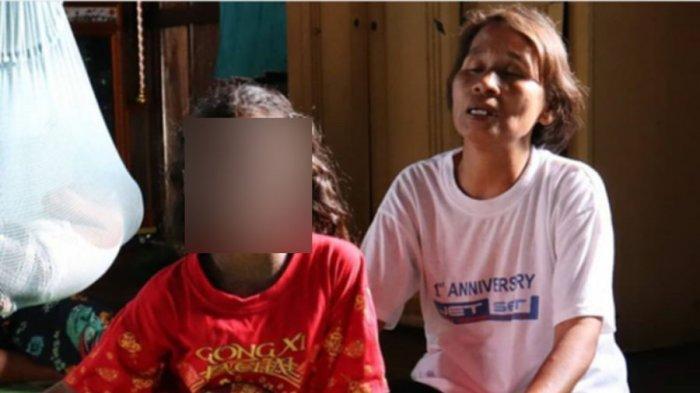 Ada 4 Anak Satu Desa Mengidap Tumor di Desa Pedamaran 5, Kondisinya Menyedihkan