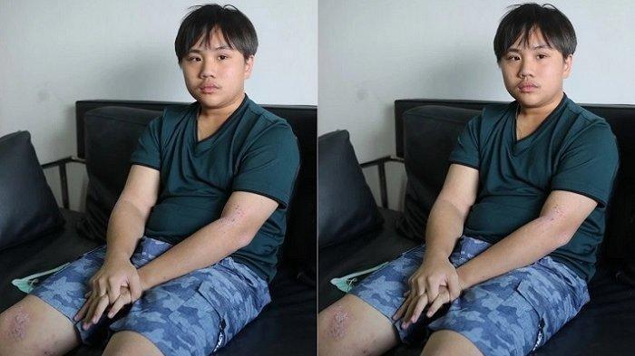 Xuan Yi remaja menderita sakit kulit, buat publik prihatin
